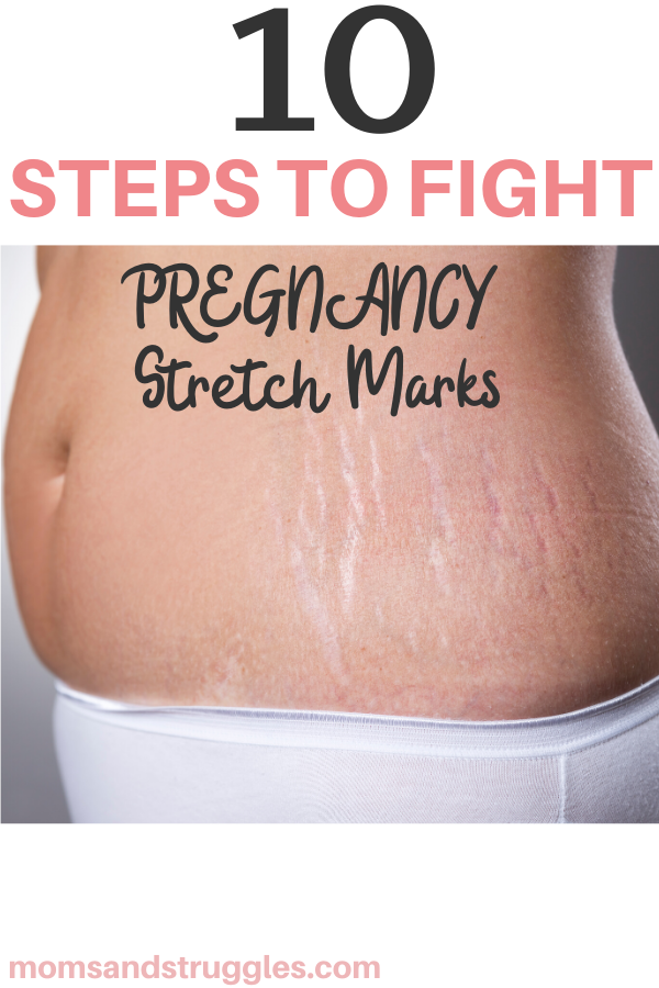 pregnancy stretch marks prevention
